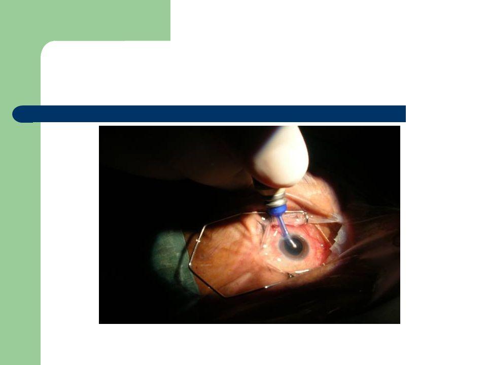 Katarakt cerrahisinde hemşirelik bakımı Günümüzde hemşirelik bakımı bazı alanlarda özelleşmeye başlamıştır.