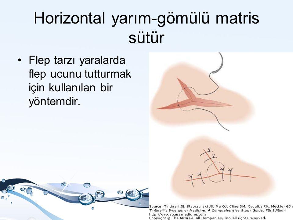 Horizontal yarım-gömülü matris sütür Flep tarzı yaralarda flep ucunu tutturmak için kullanılan bir yöntemdir.
