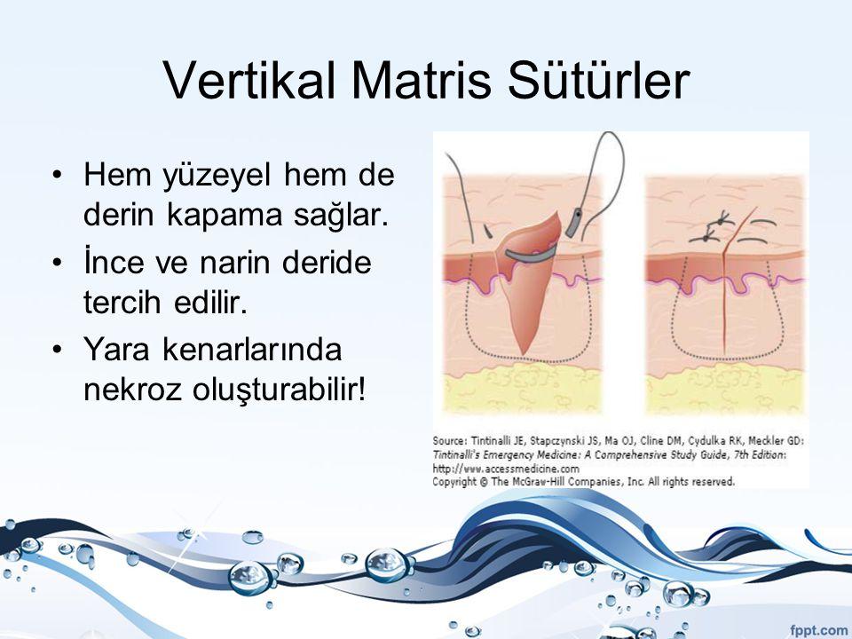 Vertikal Matris Sütürler Hem yüzeyel hem de derin kapama sağlar. İnce ve narin deride tercih edilir. Yara kenarlarında nekroz oluşturabilir!