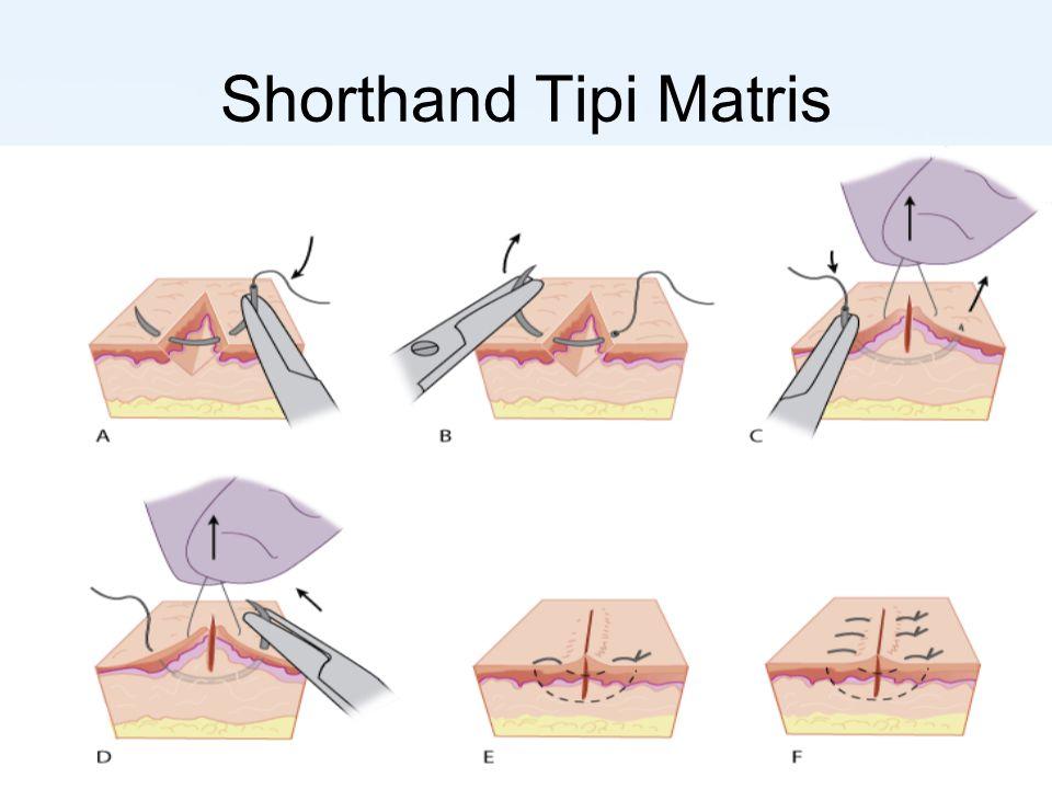 Shorthand Tipi Matris