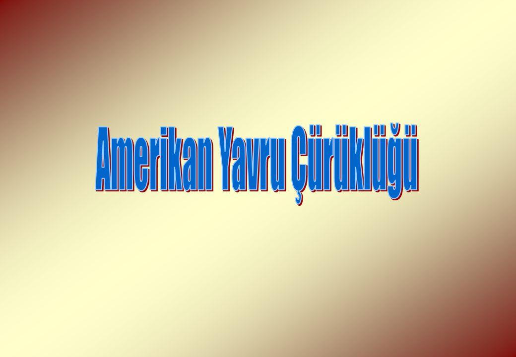 Amerikan YÇ'de Ölmüş Pupa Dili