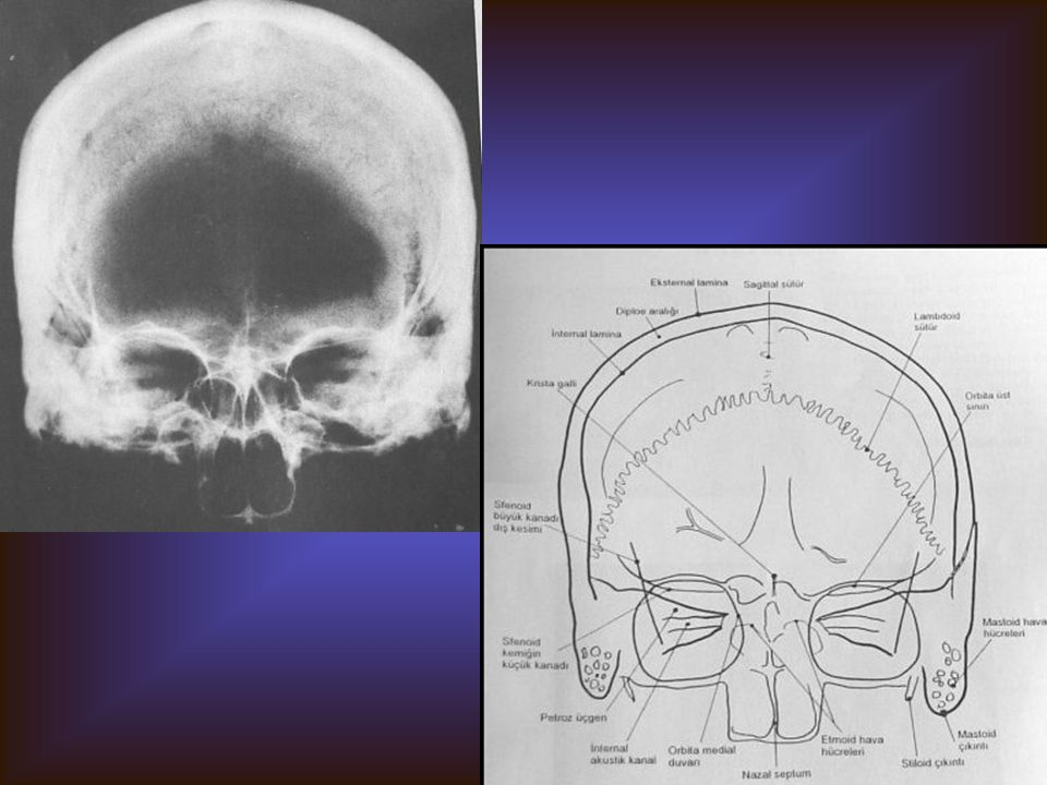 KRANYUM PA Görülebilen yapılar Frontal kemik Paryetal kemik Gözü çevreleyen kemik kısım Maksilla Mandibula Her iki zigomatik kemik Süperior orbital fi