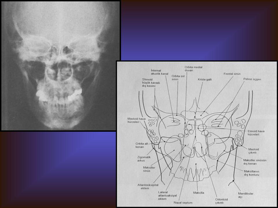 CALDWEL POZİSYONU Görülebilen yapılar Etmoid sinüsler Frontal sinüs Kısmen sfenoid sinüsler Diğer kranyal ve maksillofasyal kemikler