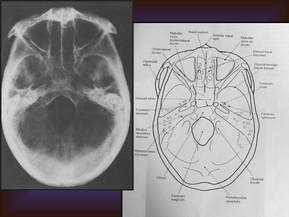 KAFA KAİDESİ (Submento-vertikal) Görülebilen yapılar Etmoid ve sfenoid sinüsler Foramen magnum Foramen spinozum, ovale, laserum Maksiller sinüsler orb