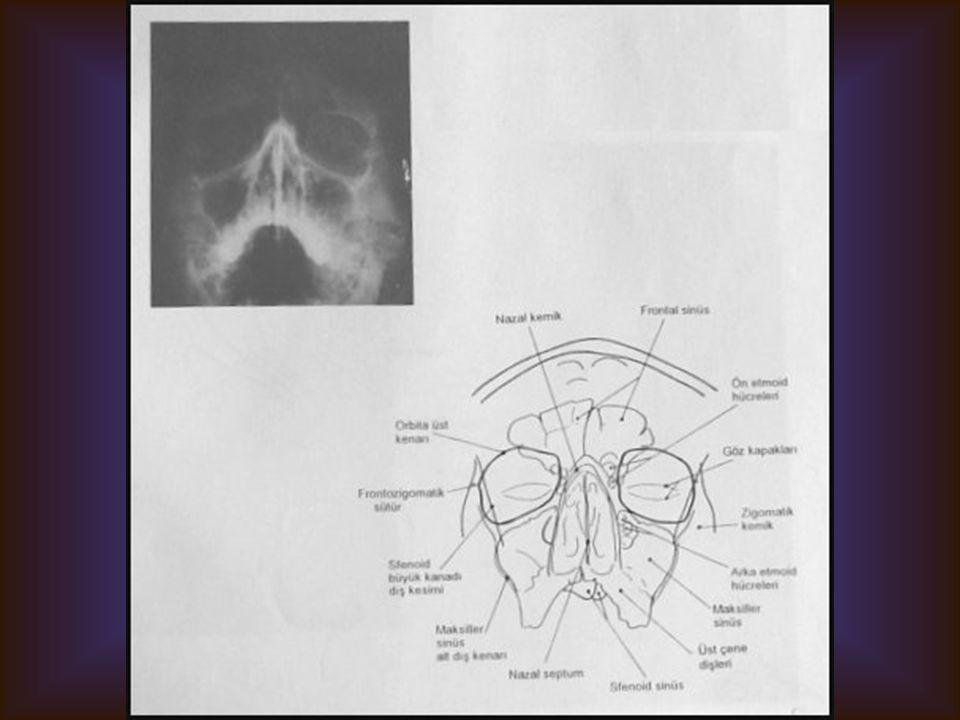 WATERS GRAFİSİ Görülebilen yapılar Paranazal sinüsler Orbita kemik sınırları Diğer maksillofasyal kemikler