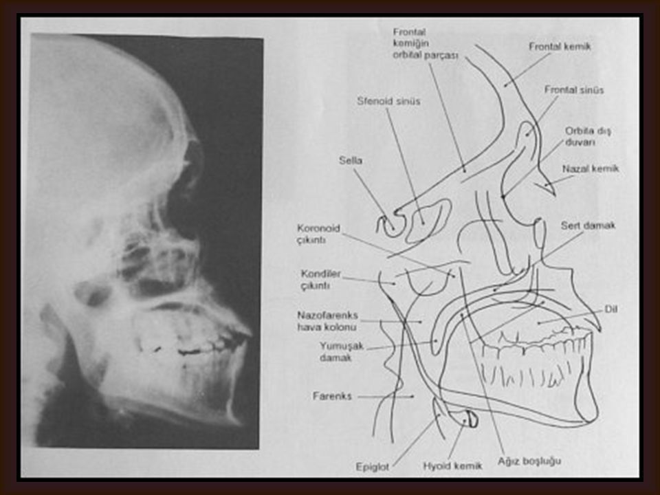 LATERAL YÜZ (SİNÜS) Görülebilen yapılar Paranazal sinüsler Sella Mandibula Diğer maksillofasyal kemikler