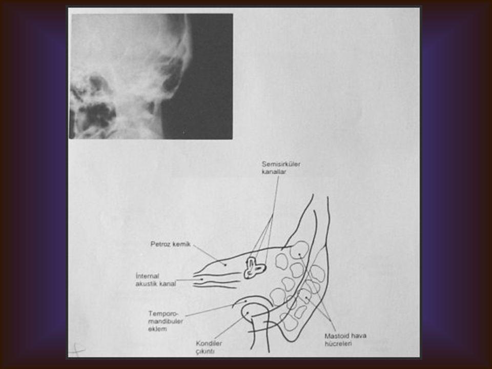 STENVERS Görülebilen yapılar Petröz kemikler İnternal aküstik kanal Semisirküler kanallar Mastoid Temporomandibüler eklem