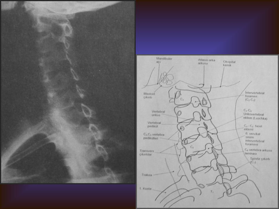 SERVİKAL OBLİK Görülebilen yapılar Nöral foramenler Faset eklemler