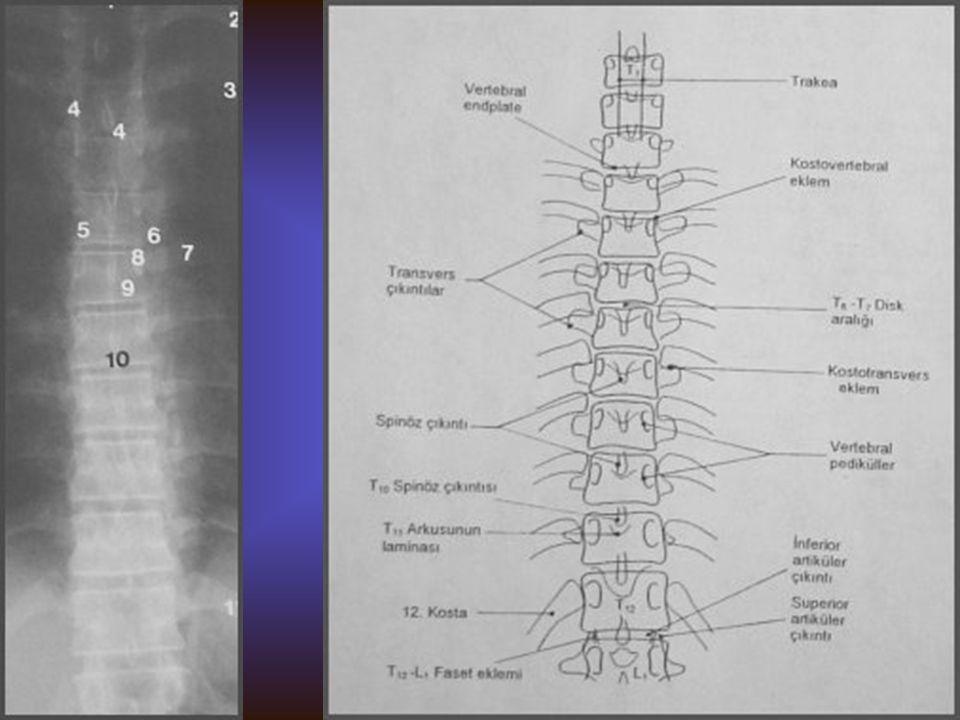 TORAKAL VERTEBRA AP Görülebilen yapılar Vertebra korpusları, pedikülleri, spinöz ve transvers proçesleri İntervertebral disk aralıkları Kosta proksima