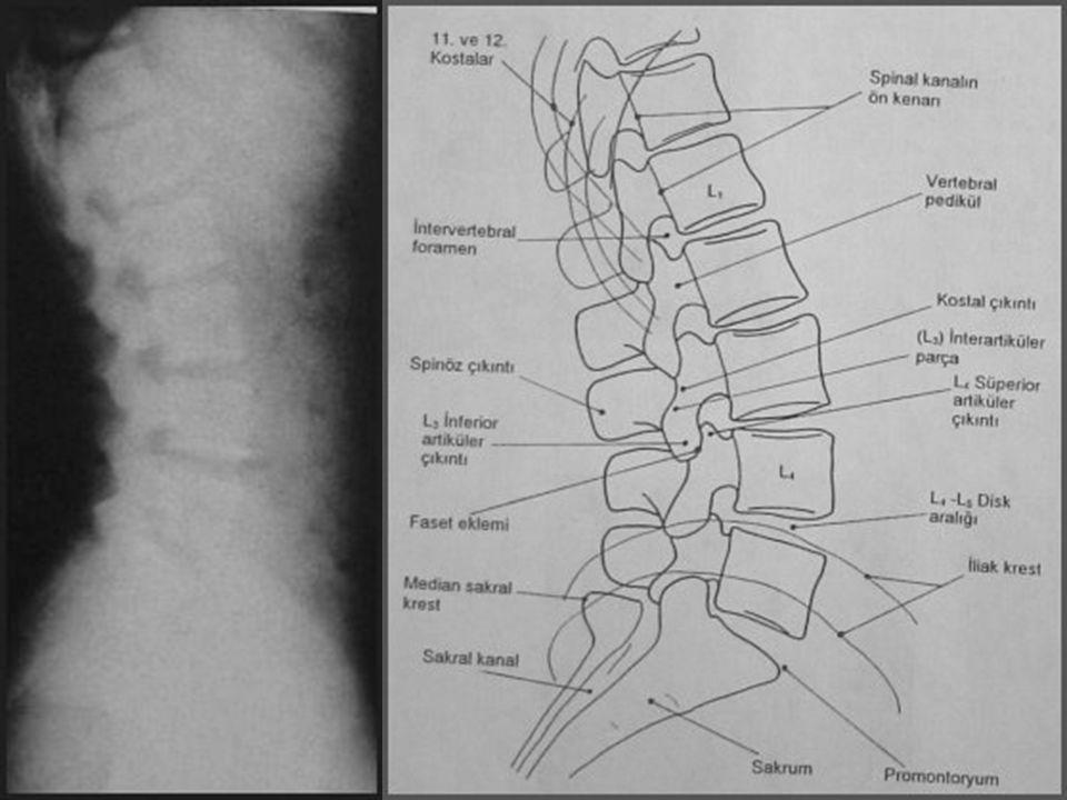 LUMBAR LATERAL Görülebilen yapılar Vertebra korpusları, spinal kanal genişliği, pediküller, spinöz proçesler Faset eklem ve artiküler proçesler Disk a