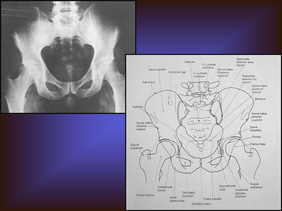PELVİS AP Görülebilen yapılar İliak kemikler: İlium, iskium, pubis L5 vertebra ve sakrum, koksiks Sakroiliak ve koksofemoral eklem Bilateral femur baş
