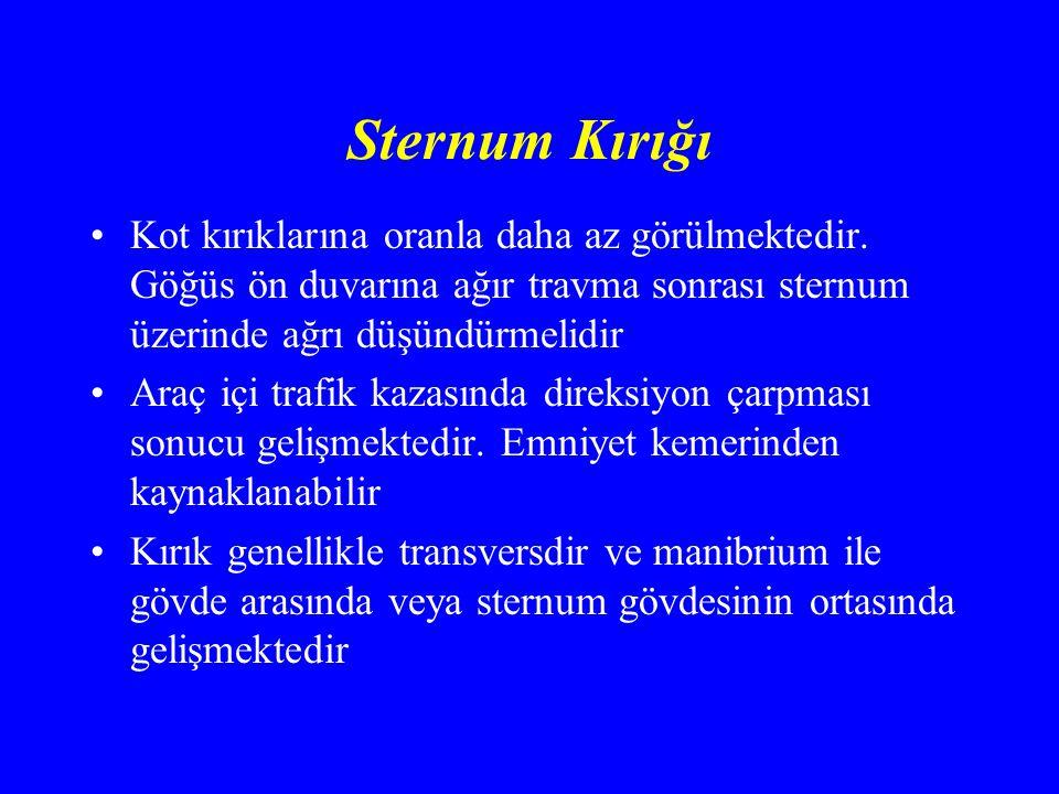 Sternum Kırığı Kot kırıklarına oranla daha az görülmektedir.