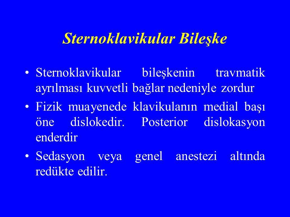 Sternoklavikular Bileşke Sternoklavikular bileşkenin travmatik ayrılması kuvvetli bağlar nedeniyle zordur Fizik muayenede klavikulanın medial başı öne dislokedir.