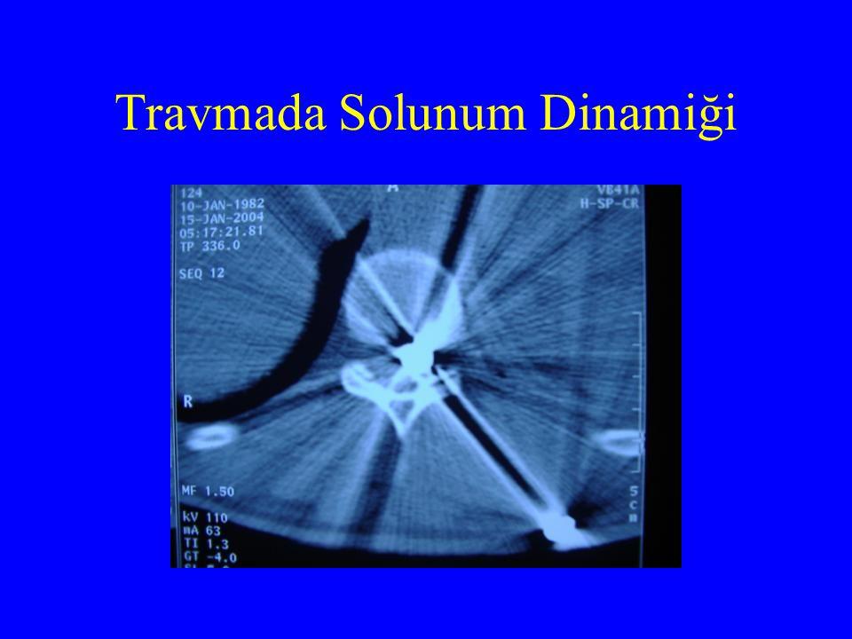 Travmada Solunum Dinamiği