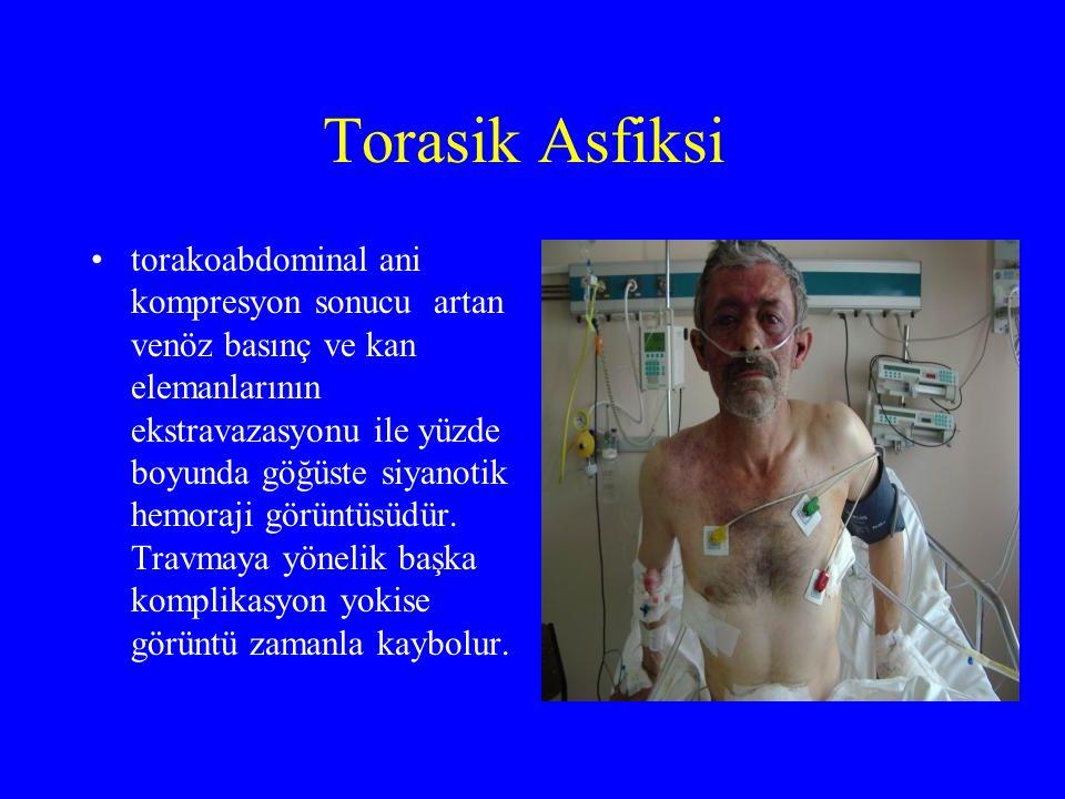 Torasik Asfiksi torakoabdominal ani kompresyon sonucu artan venöz basınç ve kan elemanlarının ekstravazasyonu ile yüzde boyunda göğüste siyanotik hemoraji görüntüsüdür.