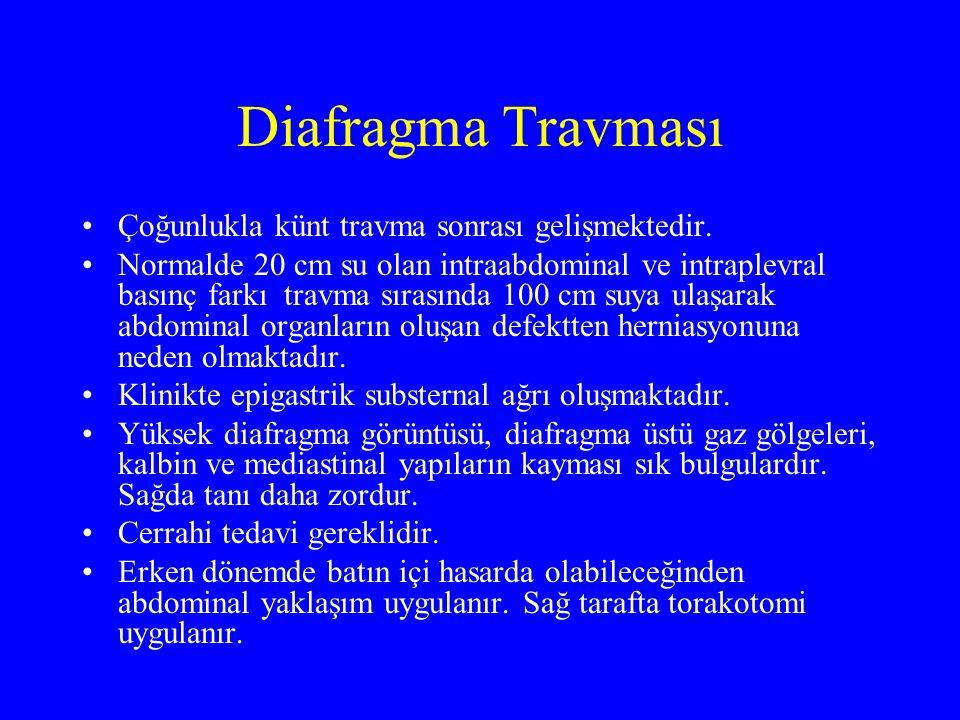 Diafragma Travması Çoğunlukla künt travma sonrası gelişmektedir.