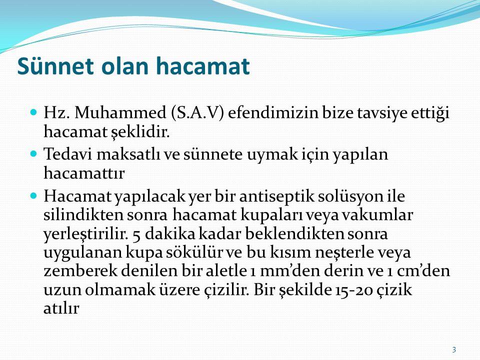Sünnet olan hacamat Hz. Muhammed (S.A.V) efendimizin bize tavsiye ettiği hacamat şeklidir. Tedavi maksatlı ve sünnete uymak için yapılan hacamattır Ha