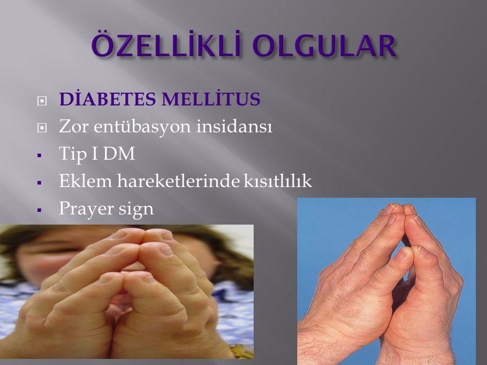  DİABETES MELLİTUS  Zor entübasyon insidansı  Tip I DM  Eklem hareketlerinde kısıtlılık  Prayer sign