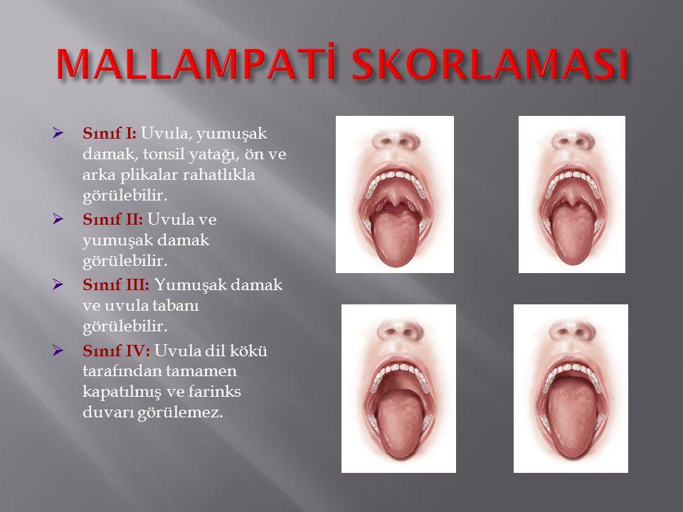  Sınıf I: Uvula, yumuşak damak, tonsil yatağı, ön ve arka plikalar rahatlıkla görülebilir.