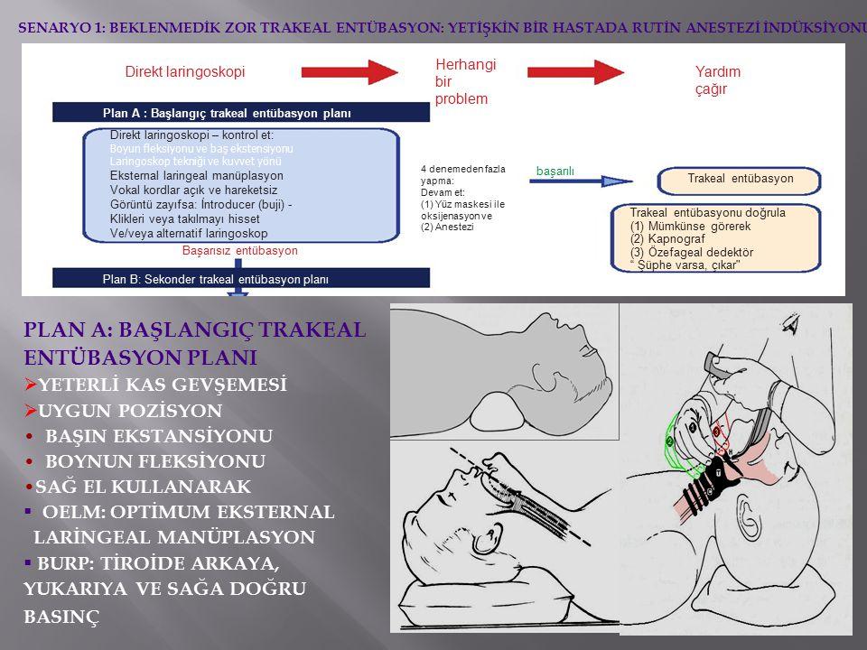 Direkt laringoskopi Plan A : Başlangıç trakeal entübasyon planı Direkt laringoskopi – kontrol et: Boyun fleksiyonu ve baş ekstensiyonu Laringoskop tekniği ve kuvvet yönü Eksternal laringeal manüplasyon Vokal kordlar açık ve hareketsiz Görüntü zayıfsa: İntroducer (buji) - Klikleri veya takılmayı hisset Ve/veya alternatif laringoskop Başarısız entübasyon Plan B: Sekonder trakeal entübasyon planı Herhangi bir problem Yardım çağır 4 denemeden fazla yapma: Devam et: (1) Yüz maskesi ile oksijenasyon ve (2) Anestezi başarılı Trakeal entübasyon Trakeal entübasyonu doğrula (1) Mümkünse görerek (2) Kapnograf (3) Özefageal dedektör Şüphe varsa, çıkar SENARYO 1: BEKLENMEDİK ZOR TRAKEAL ENTÜBASYON: YETİŞKİN BİR HASTADA RUTİN ANESTEZİ İNDÜKSİYONU PLAN A: BAŞLANGIÇ TRAKEAL ENTÜBASYON PLANI  YETERLİ KAS GEVŞEMESİ  UYGUN POZİSYON BAŞIN EKSTANSİYONU BOYNUN FLEKSİYONU SAĞ EL KULLANARAK  OELM: OPTİMUM EKSTERNAL LARİNGEAL MANÜPLASYON  BURP: TİROİDE ARKAYA, YUKARIYA VE SAĞA DOĞRU BASINÇ