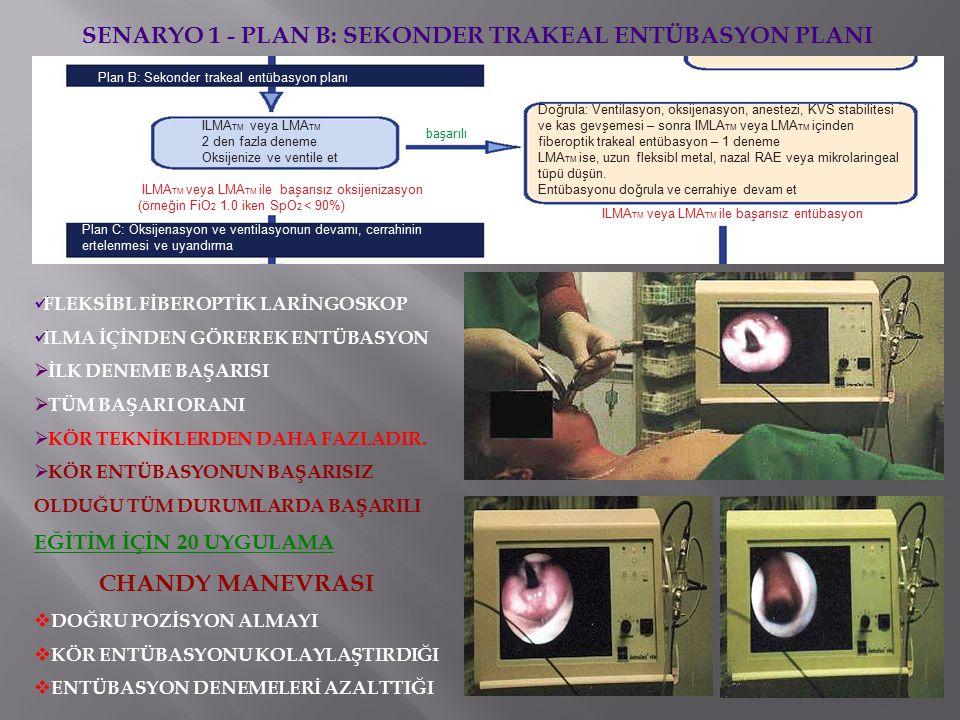 Plan B: Sekonder trakeal entübasyon planı ILMA TM veya LMA TM 2 den fazla deneme Oksijenize ve ventile et ILMA TM veya LMA TM ile başarısız oksijenizasyon (örneğin FiO 2 1.0 iken SpO 2 < 90%) başarılı Doğrula: Ventilasyon, oksijenasyon, anestezi, KVS stabilitesi ve kas gevşemesi – sonra IMLA TM veya LMA TM içinden fiberoptik trakeal entübasyon – 1 deneme LMA TM ise, uzun fleksibl metal, nazal RAE veya mikrolaringeal tüpü düşün.