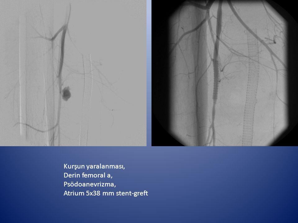 Kurşun yaralanması, Derin femoral a, Psödoanevrizma, Atrium 5x38 mm stent-greft