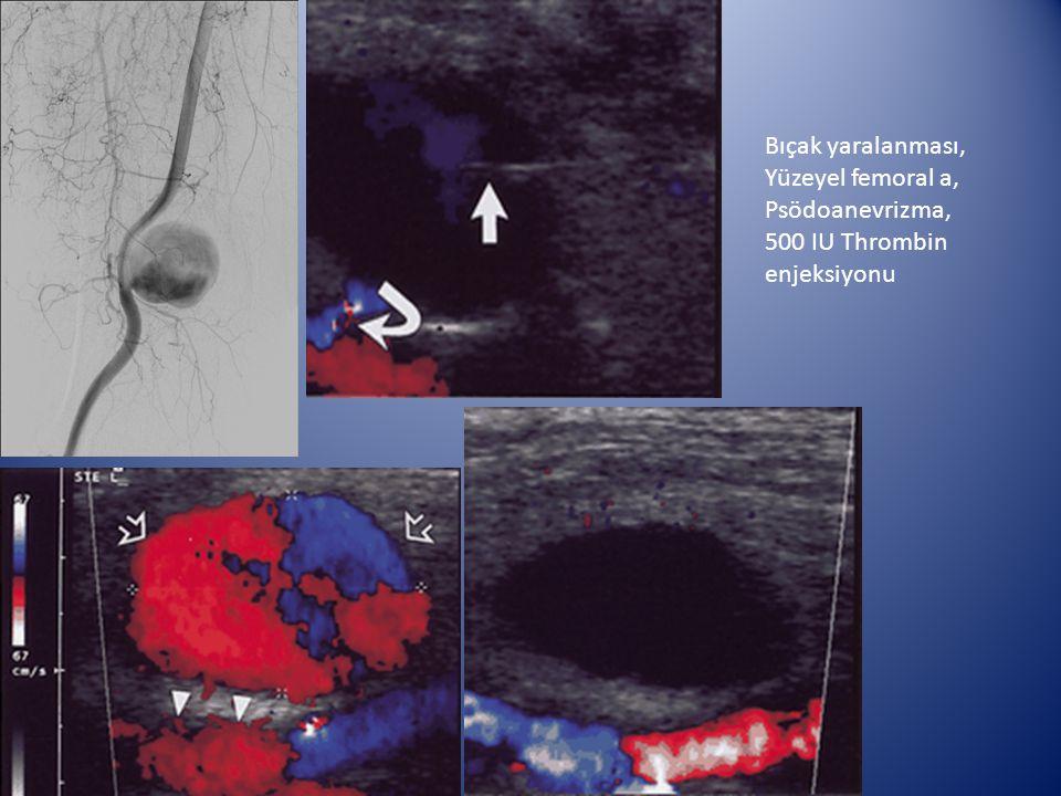 Bıçak yaralanması, Yüzeyel femoral a, Psödoanevrizma, 500 IU Thrombin enjeksiyonu