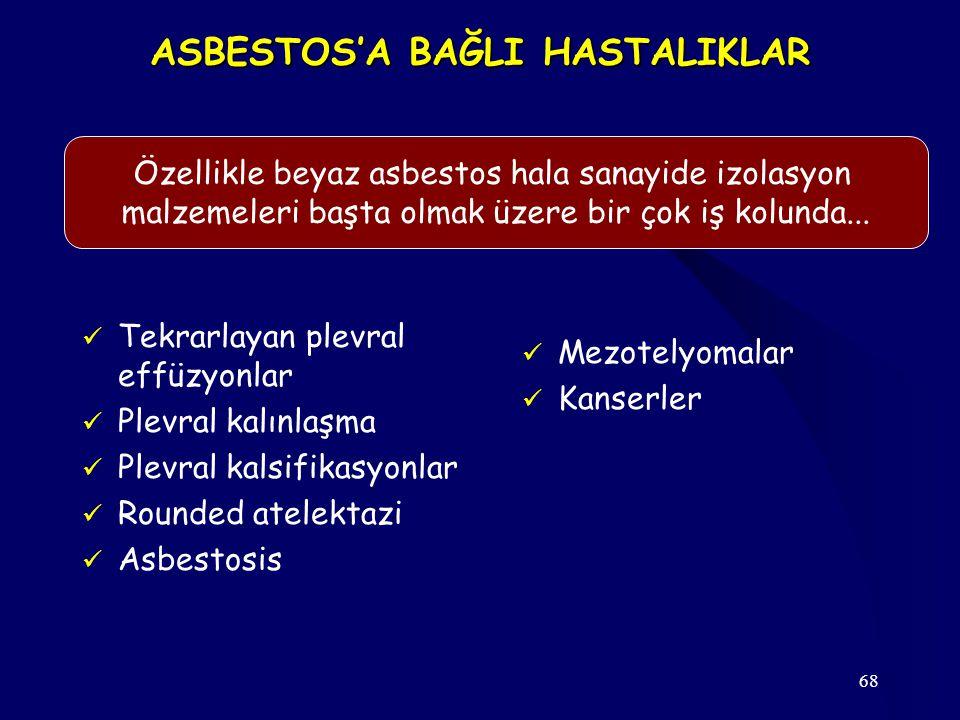 68 ASBESTOS'A BAĞLI HASTALIKLAR Tekrarlayan plevral effüzyonlar Plevral kalınlaşma Plevral kalsifikasyonlar Rounded atelektazi Asbestosis Mezotelyomalar Kanserler Özellikle beyaz asbestos hala sanayide izolasyon malzemeleri başta olmak üzere bir çok iş kolunda...