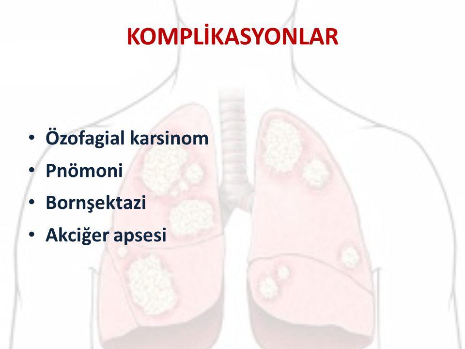 MİDE KANSERİ Mide dokusunda malignant hücre sayısının arttığı bir hastalıktır.