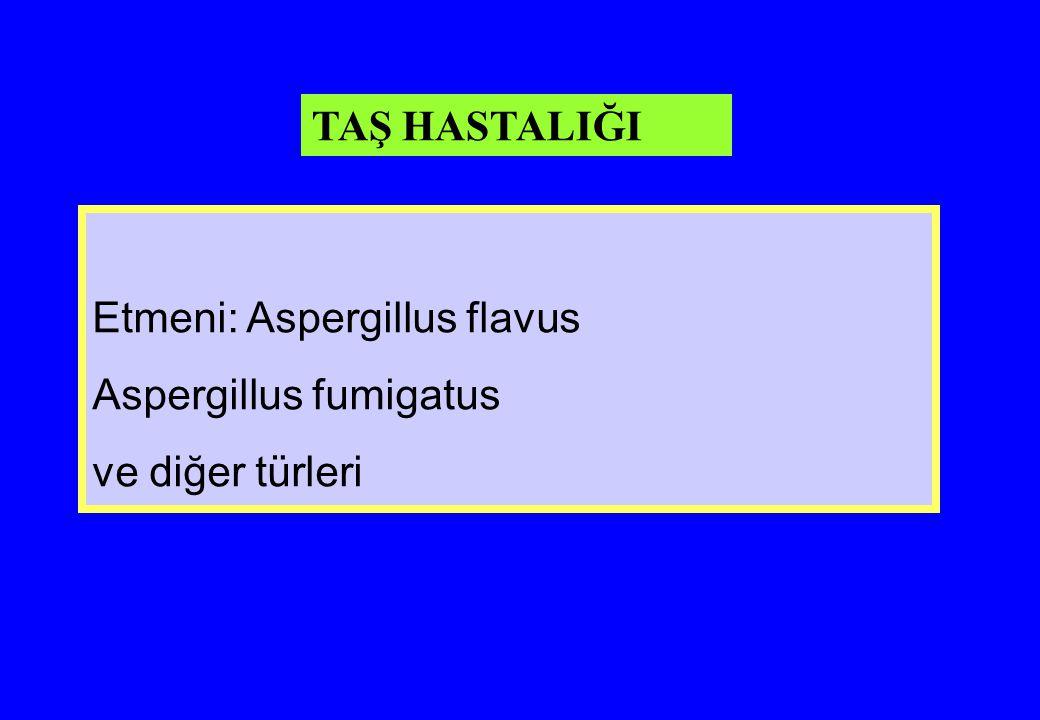 Etmeni: Aspergillus flavus Aspergillus fumigatus ve diğer türleri TAŞ HASTALIĞI