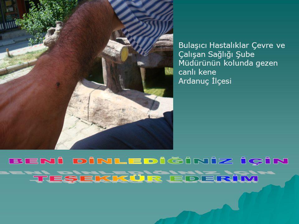 Bulaşıcı Hastalıklar Çevre ve Çalışan Sağlığı Şube Müdürünün kolunda gezen canlı kene Ardanuç İlçesi