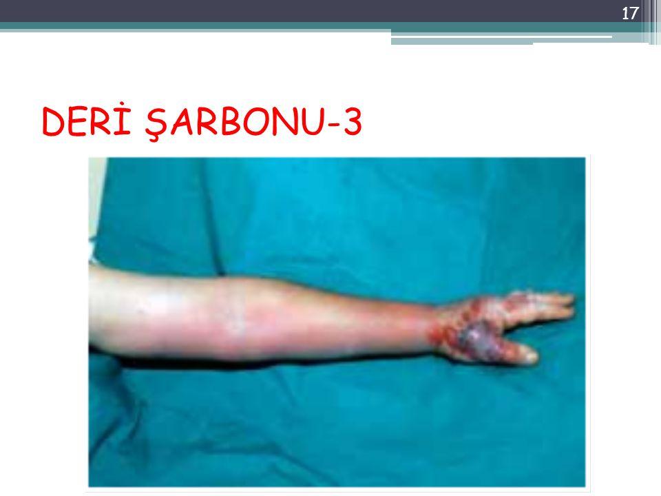 DERİ ŞARBONU-3 17