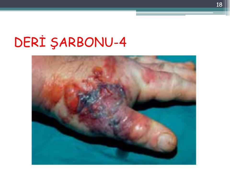 DERİ ŞARBONU-4 18