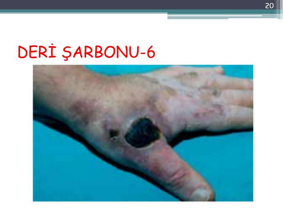 DERİ ŞARBONU-6 20