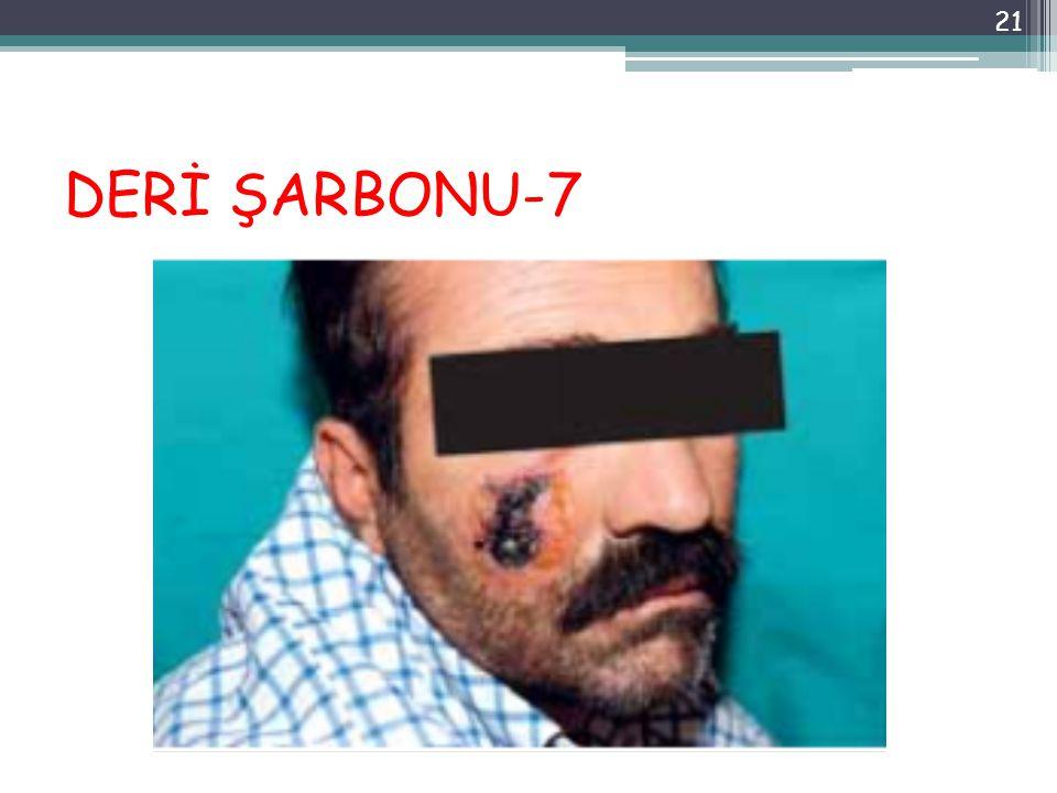 DERİ ŞARBONU-7 21