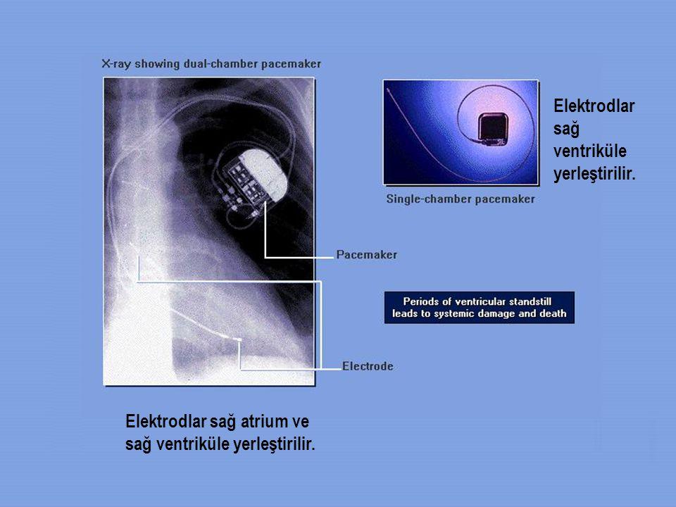 Elektrodlar sağ ventriküle yerleştirilir. Elektrodlar sağ atrium ve sağ ventriküle yerleştirilir.