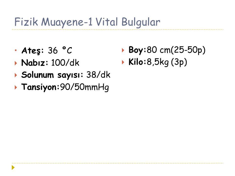 Fizik Muayene-1 Vital Bulgular Ateş: 36 °C  Nabız: 100/dk  Solunum sayısı: 38/dk  Tansiyon:90/50mmHg  Boy:80 cm(25-50p)  Kilo:8,5kg (3p)