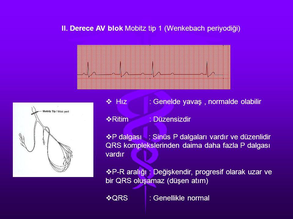 II. Derece AV blok Mobitz tip 1 (Wenkebach periyodiği)  Hız : Genelde yavaş, normalde olabilir  Ritim : Düzensizdir  P dalgası : Sinüs P dalgaları