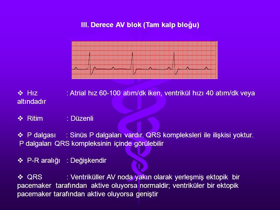 III. Derece AV blok (Tam kalp bloğu)  Hız : Atrial hız 60-100 atım/dk iken, ventrikül hızı 40 atım/dk veya altındadır  Ritim : Düzenli  P dalgası :