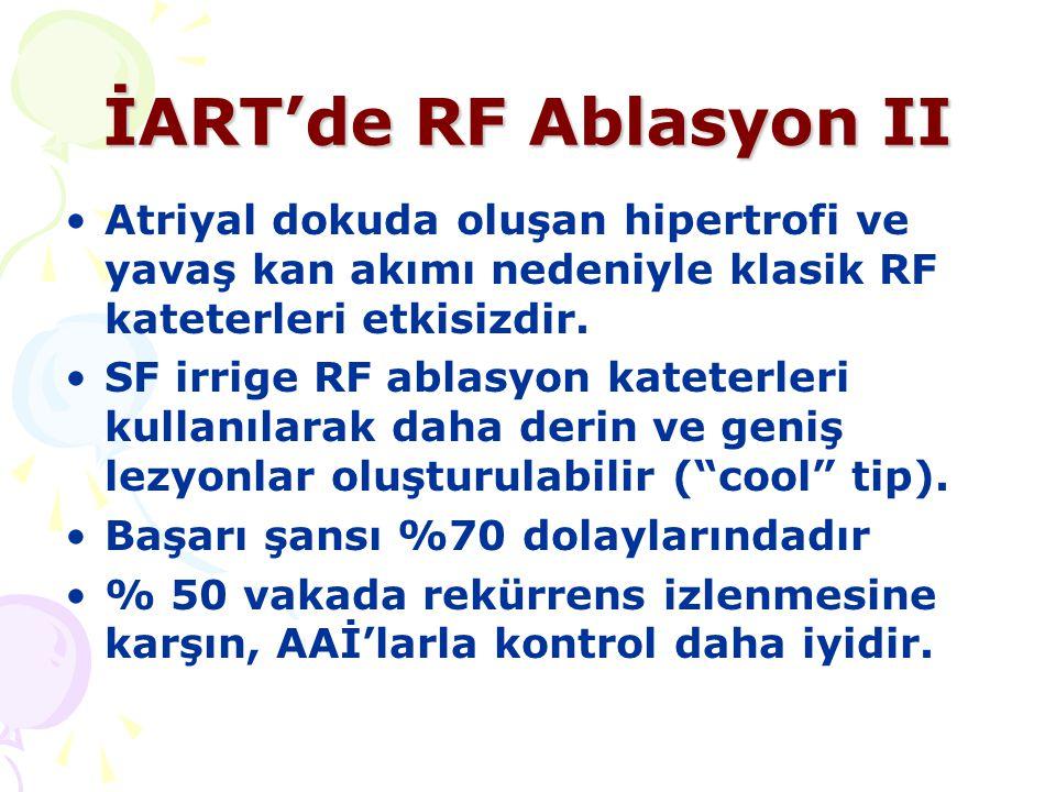 İART'de RF Ablasyon II Atriyal dokuda oluşan hipertrofi ve yavaş kan akımı nedeniyle klasik RF kateterleri etkisizdir. SF irrige RF ablasyon kateterle