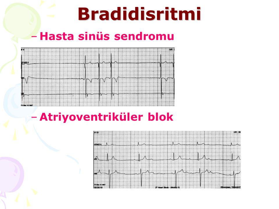 Bradidisritmi –Hasta sinüs sendromu –Atriyoventriküler blok