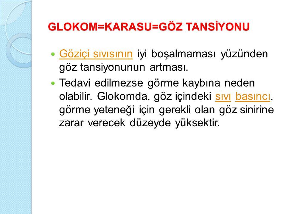 GLOKOM=KARASU=GÖZ TANSİYONU Göziçi sıvısının iyi boşalmaması yüzünden göz tansiyonunun artması.