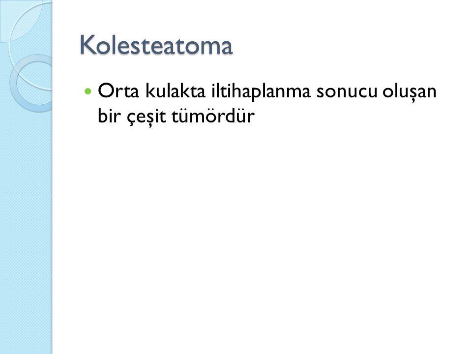Kolesteatoma Orta kulakta iltihaplanma sonucu oluşan bir çeşit tümördür