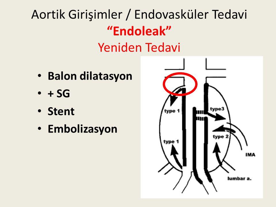 """Aortik Girişimler / Endovasküler Tedavi """"Endoleak"""" Yeniden Tedavi Balon dilatasyon + SG Stent Embolizasyon"""