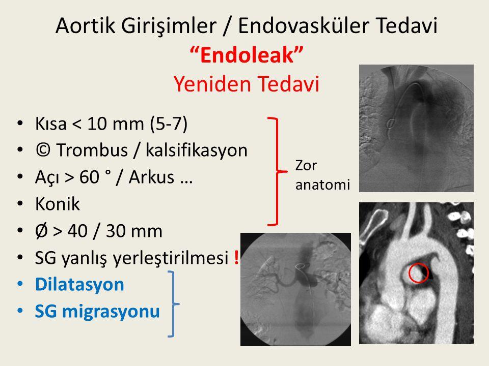 """Aortik Girişimler / Endovasküler Tedavi """"Endoleak"""" Yeniden Tedavi Kısa < 10 mm (5-7) © Trombus / kalsifikasyon Açı > 60 ° / Arkus … Konik Ø > 40 / 30"""