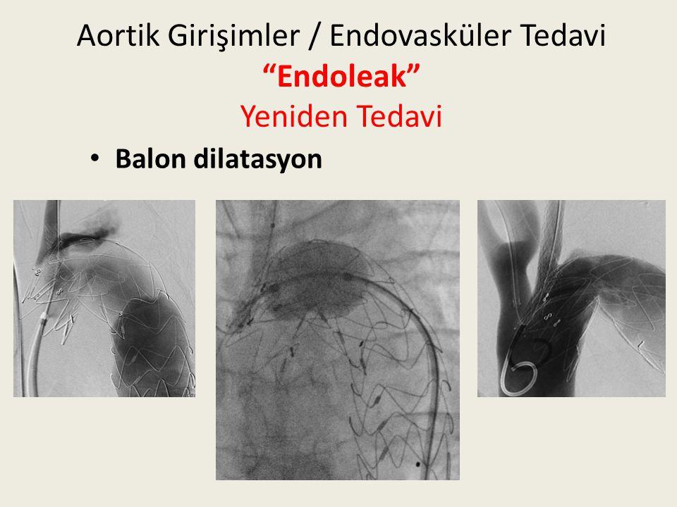 """Aortik Girişimler / Endovasküler Tedavi """"Endoleak"""" Yeniden Tedavi Balon dilatasyon"""