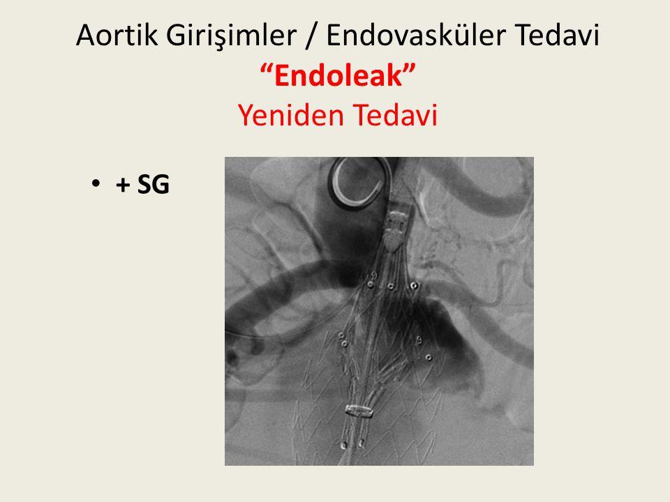 """Aortik Girişimler / Endovasküler Tedavi """"Endoleak"""" Yeniden Tedavi + SG"""