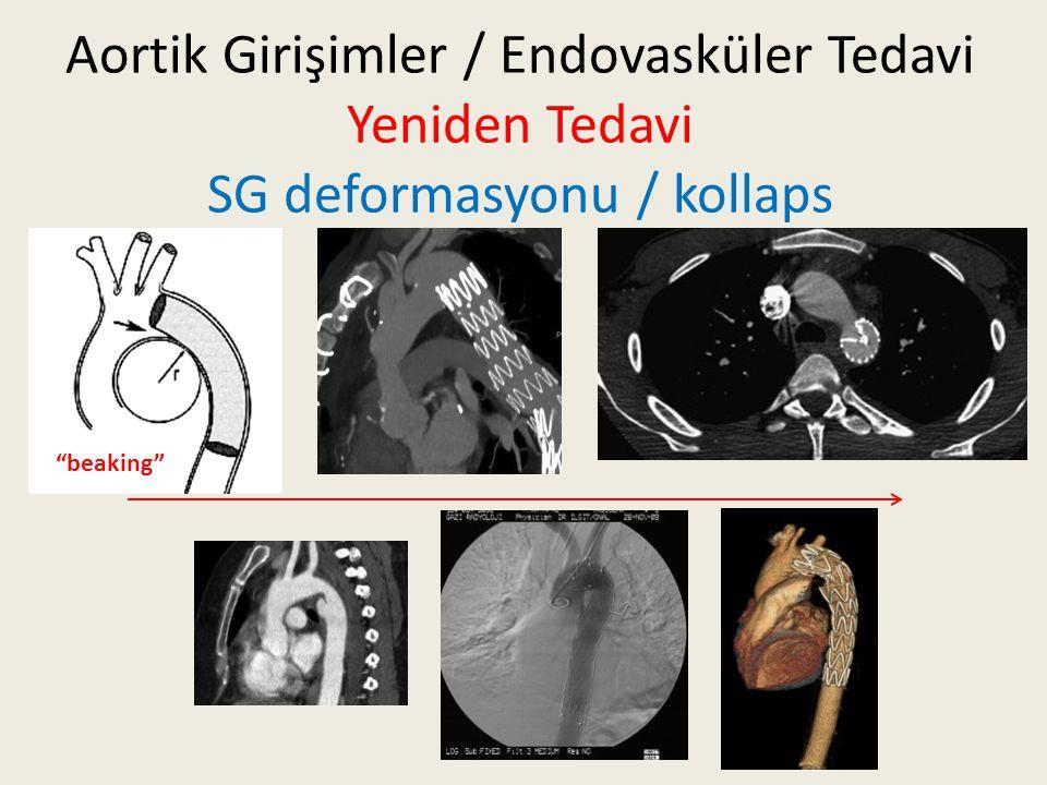 """Aortik Girişimler / Endovasküler Tedavi Yeniden Tedavi SG deformasyonu / kollaps """"beaking"""""""