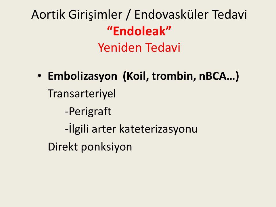"""Aortik Girişimler / Endovasküler Tedavi """"Endoleak"""" Yeniden Tedavi Embolizasyon (Koil, trombin, nBCA…) Transarteriyel -Perigraft -İlgili arter kateteri"""