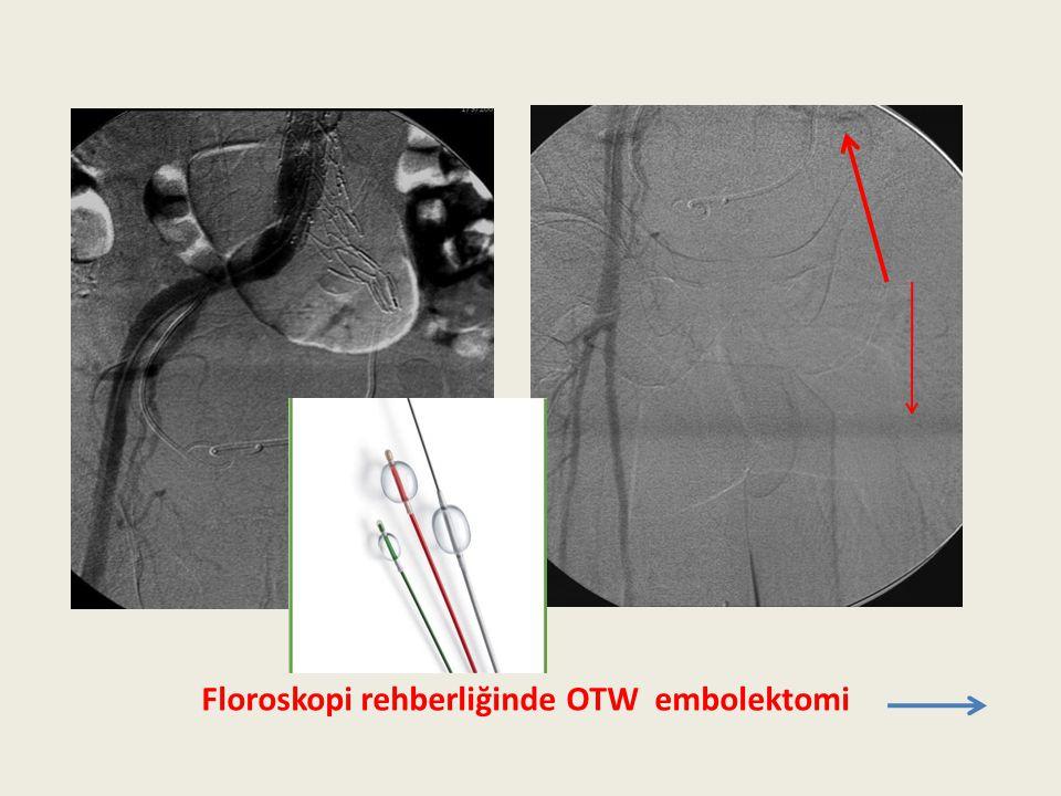 Floroskopi rehberliğinde OTW embolektomi